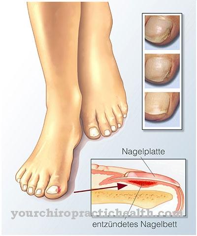 Inflamación del lecho ungueal.