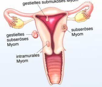 Fibroide (tumore uterino)
